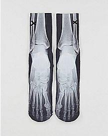 Sublimated X-Ray Crew Socks
